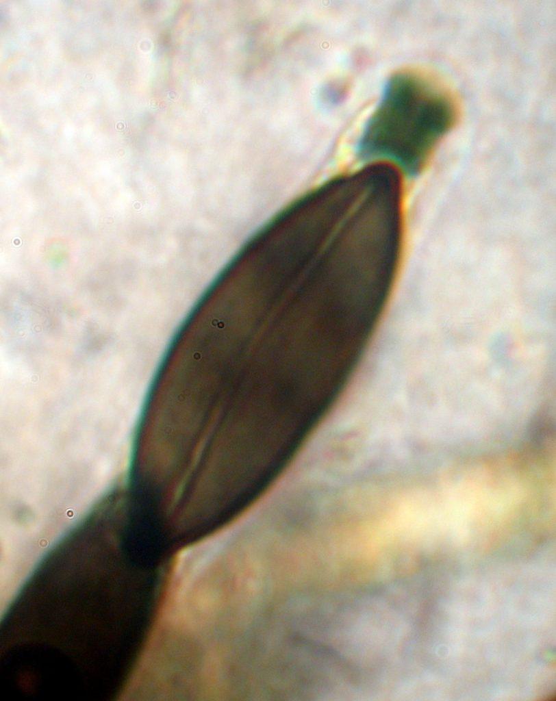 Espora y asca R. britanica 08-03-2017 20-54-40 1494x1885