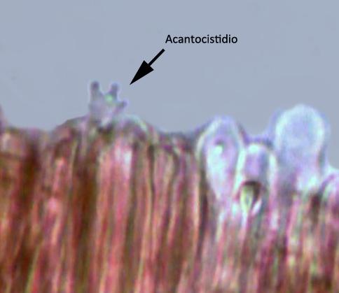 acantocistidios