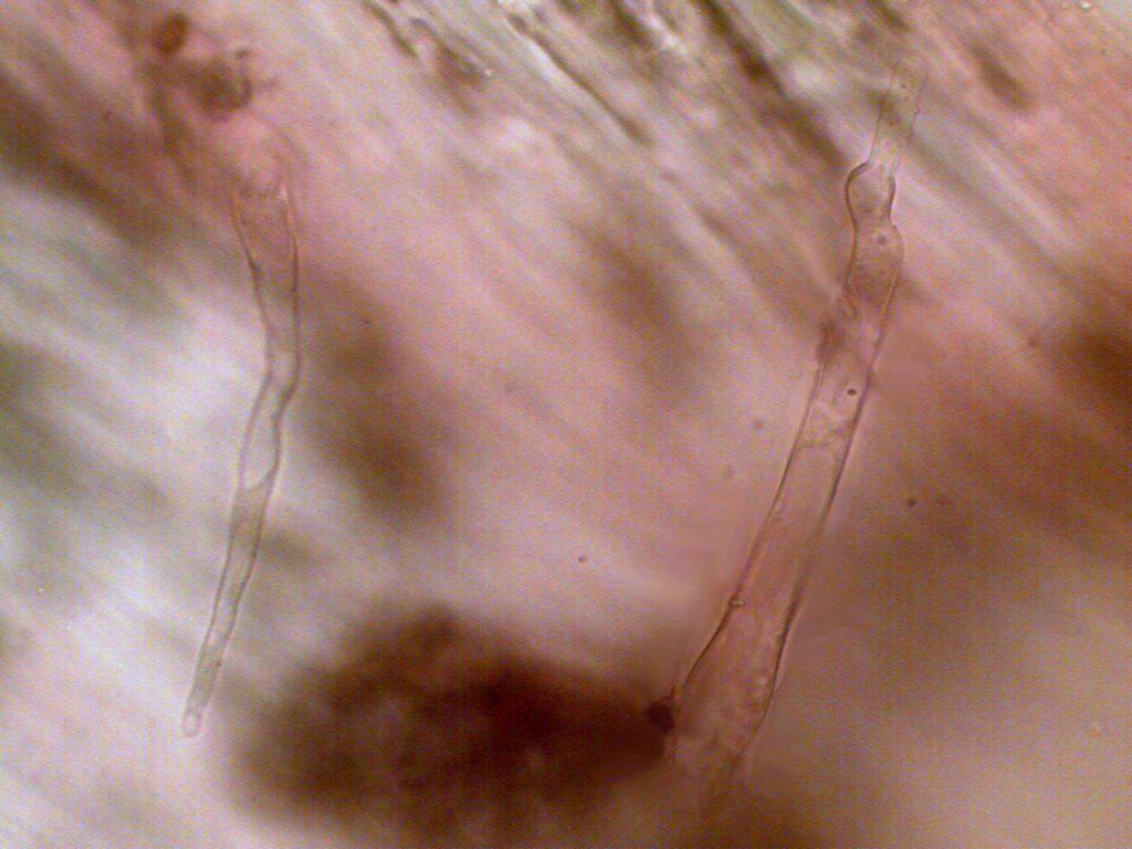 caulocistidios mic